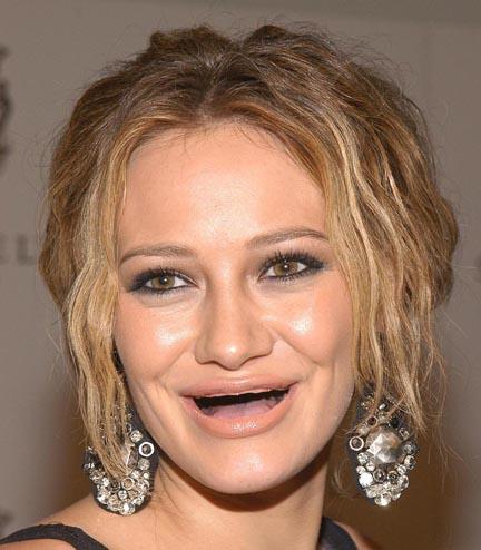 女明星牙齒掉光示意圖8