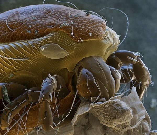 25種你不想在顯微鏡下看到的東西11
