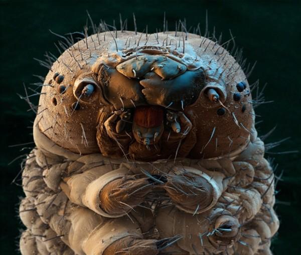 25種你不想在顯微鏡下看到的東西15