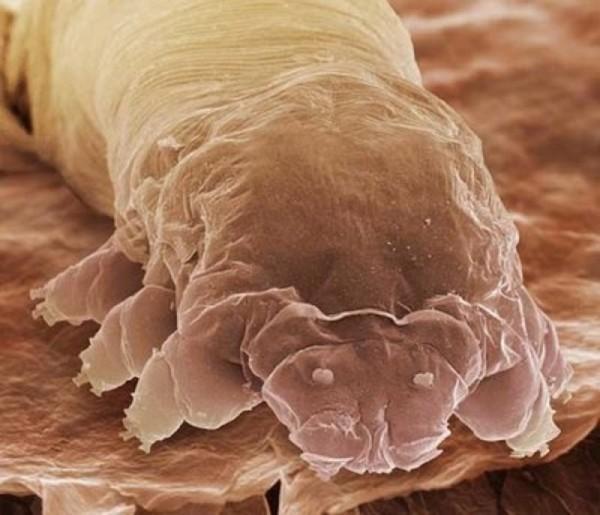 25種你不想在顯微鏡下看到的東西3