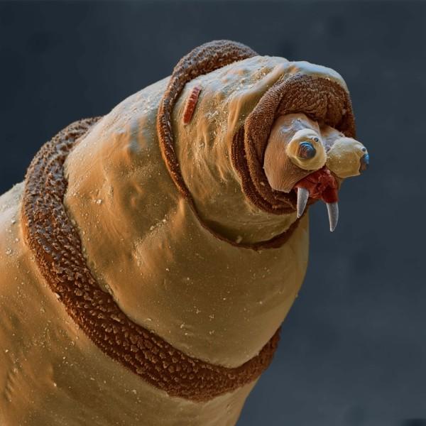 25種你不想在顯微鏡下看到的東西7