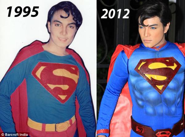 把自己整型成超人的菲律賓人2