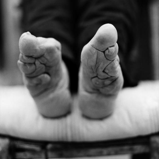 裹小腳10